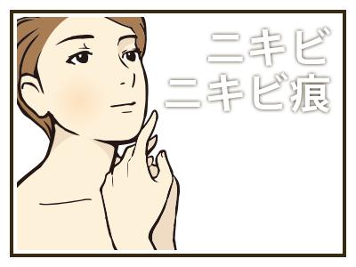 診療項目:ニキビ・ニキビ痕