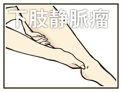 診療項目:下肢静脈瘤